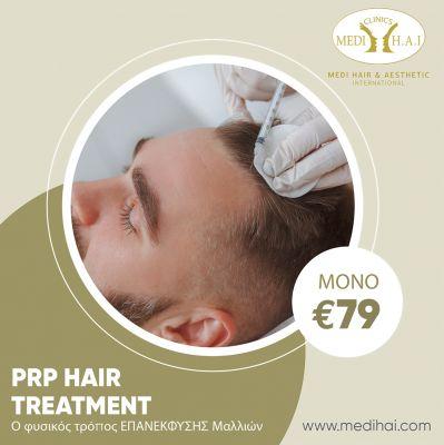 Θεραπεία Τριχόπτωσης - PRP Hair Treatment από την MEDI H.A.I στην Λεμεσό! - skroutz.com.cy