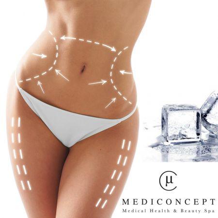 Σωματογλυπτική με Κρυολιπόλυση σε 4 Σημεία και Παρελθόν το Συσσωρευμένο Τοπικό Πάχος – Medi Concept Λευκωσία - skroutz.com.cy