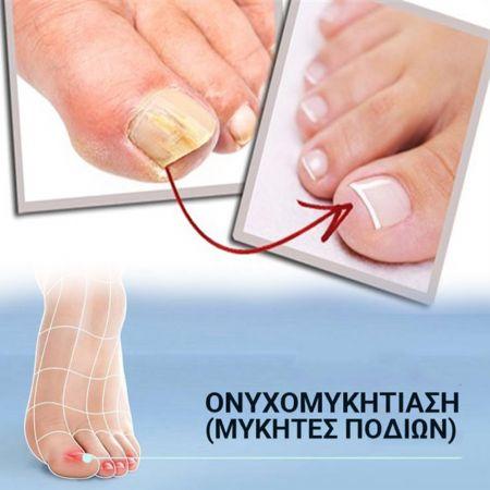 Θεραπεία για τους μύκητες των νυχιών με Laser - Λευκωσία - Λεμεσός - skroutz.com.cy