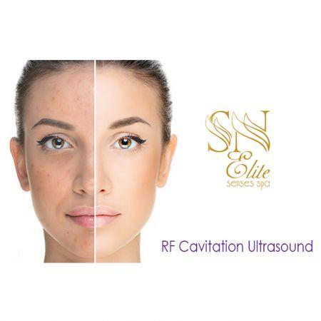 10 Συνεδρίες RF Cavitation Ultrasound για Πανάδες & Δυσχρωμίες στο Πρόσωπο για Τέλεια Επιδερμίδα - SN ELITE Senses Spa