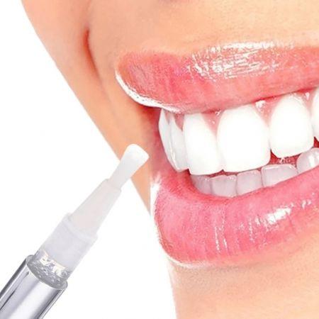 Στυλό Επαγγελματικής Λεύκανσης Δοντιών - skroutz.com.cy