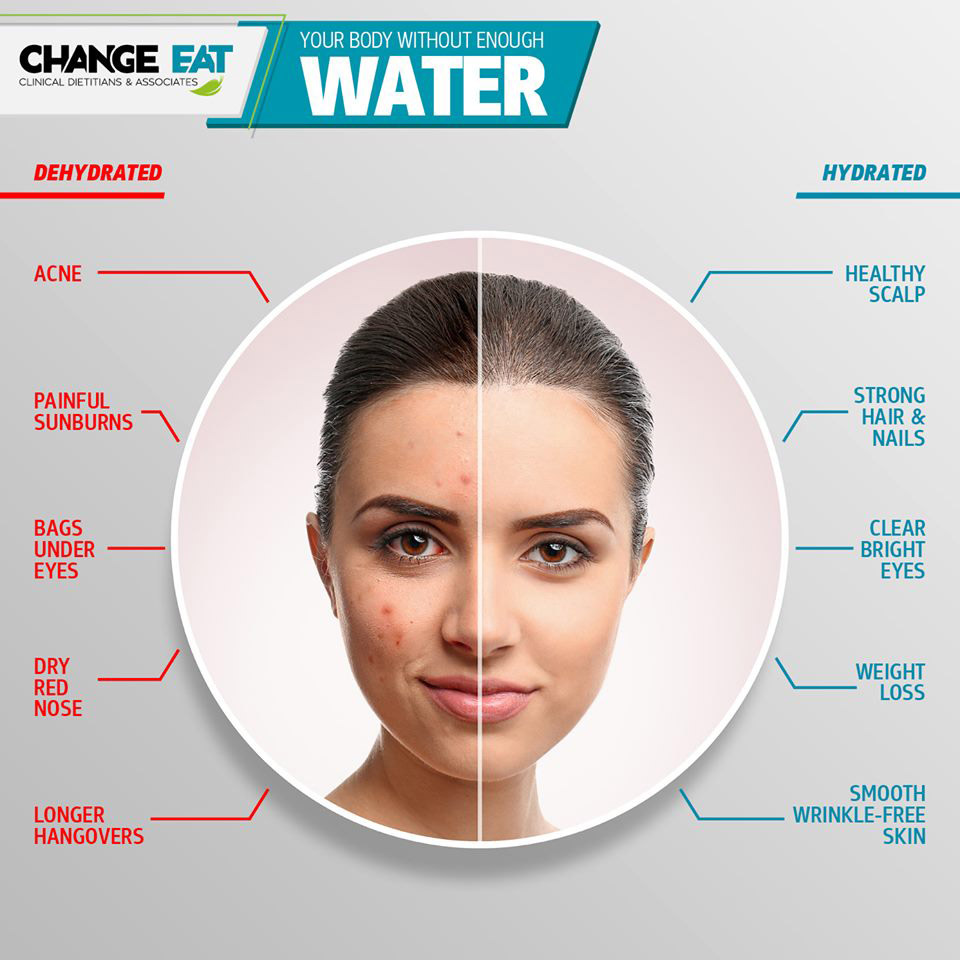 body without enough water - change eat - whatsoncyprus